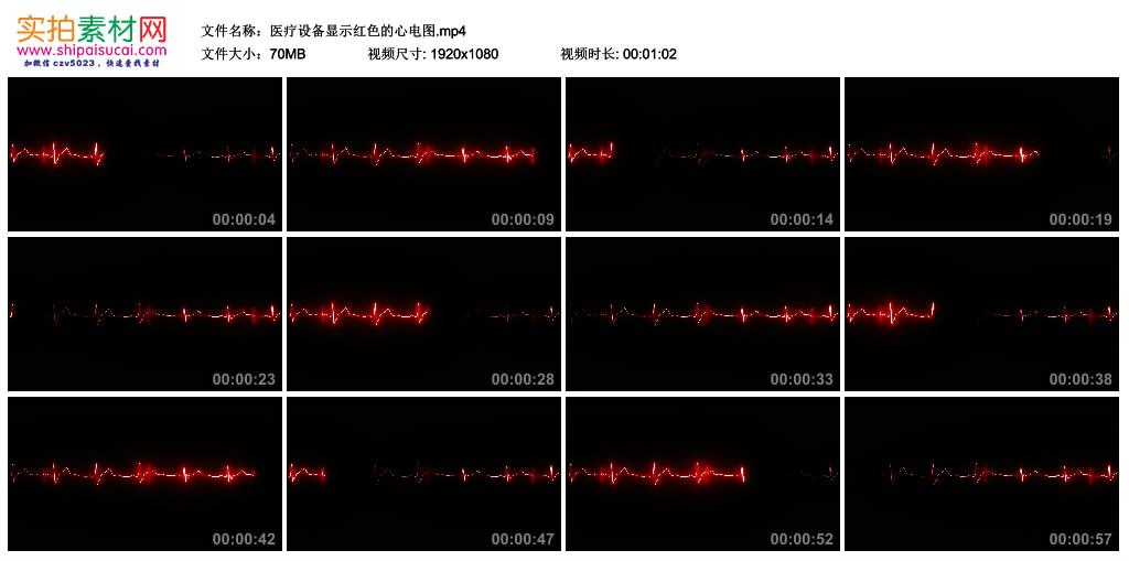 高清实拍视频丨医疗设备显示红色的心电图 视频素材-第1张