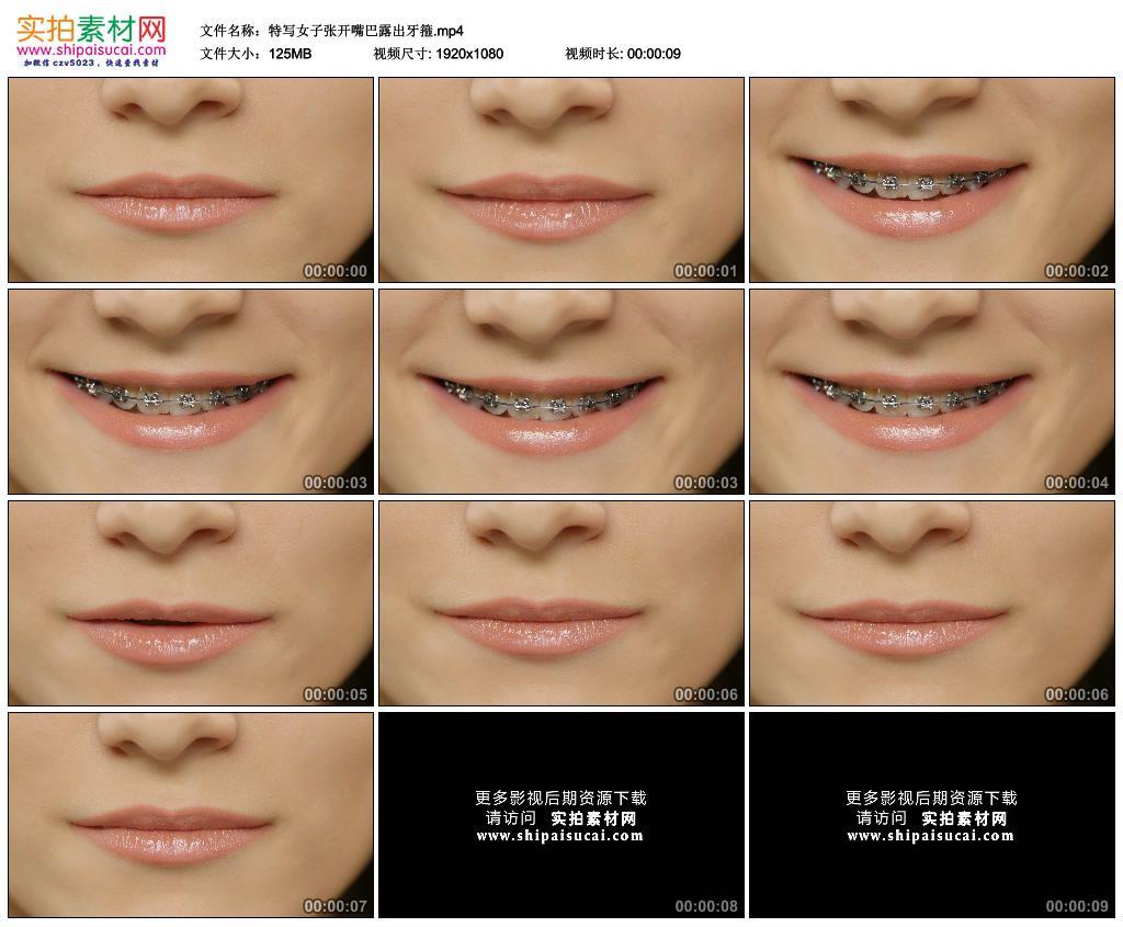 高清实拍视频素材丨特写女子张开嘴巴露出牙箍 4K视频-第1张