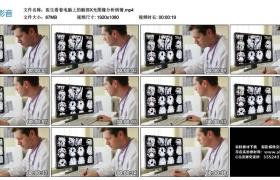 高清实拍视频丨医生看着电脑上的脑部X光图像分析病情