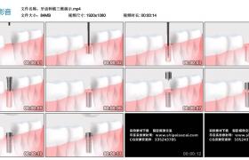 高清动态视频丨牙齿种植三维演示