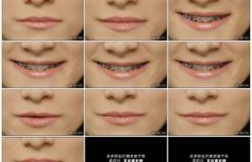 高清实拍视频素材丨特写女子张开嘴巴露出牙箍