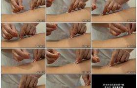 高清实拍视频素材丨特写扎完针灸拔出银针