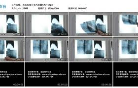 高清实拍视频素材丨在医院观片室内放置X光片