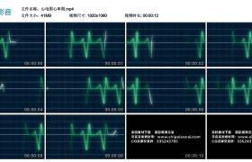 高清实拍视频丨心电图心率图